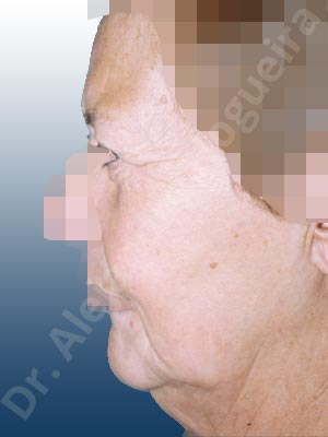 Párpados inferiores abultados,Párpados superiores abultados,Surcos nasogenianos profundos,Papada,Mejillas caídas,Cejas caídas,Cara caída,Frente caída,Caída del perfil mandibular,Cuello caído,Párpados superiores descolgados,Ptosis de los párpados superiores,Lifting de la cara y el cuello en plano profundo de SMAS platisma,Resección de bolsas grasas en el párpado inferior,Lifting supraperióstico extendido con incisiones temporales cortas de los dos tercios superiores de la cara,Incisión vía transconjuntival,Resección de bolsas grasas en el párpado superior,Resección cutánea y muscular de párpado superior