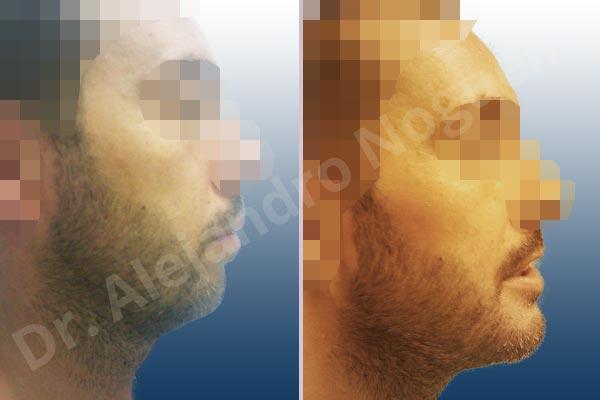 Mentón pequeño,Mentón débil,Osteotomía horizontal de mentón,Genioplastia unidimensional,Avance óseo de mentón - photo 2