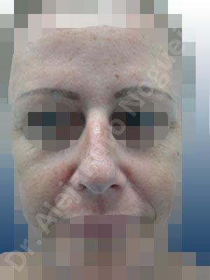 Nariz ancha,Giba dorsal,Cartílagos alares grandes,Nariz grande,Punta sobreproyectada,Incisión vía cerrada,Resección de giba dorsal,Resección cefálica de cruras laterales,Acortamiento por resección de cruras laterales,Acortamiento por resección de cruras mediales,Osteotomías de huesos nasales