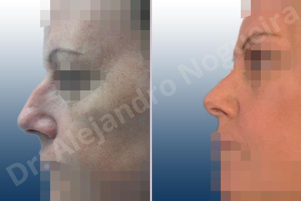 Nariz ancha,Giba dorsal,Cartílagos alares grandes,Nariz grande,Punta sobreproyectada,Incisión vía cerrada,Resección de giba dorsal,Resección cefálica de cruras laterales,Acortamiento por resección de cruras laterales,Acortamiento por resección de cruras mediales,Osteotomías de huesos nasales - photo 2