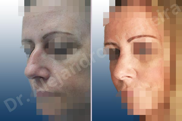Nariz ancha,Giba dorsal,Cartílagos alares grandes,Nariz grande,Punta sobreproyectada,Incisión vía cerrada,Resección de giba dorsal,Resección cefálica de cruras laterales,Acortamiento por resección de cruras laterales,Acortamiento por resección de cruras mediales,Osteotomías de huesos nasales - photo 3