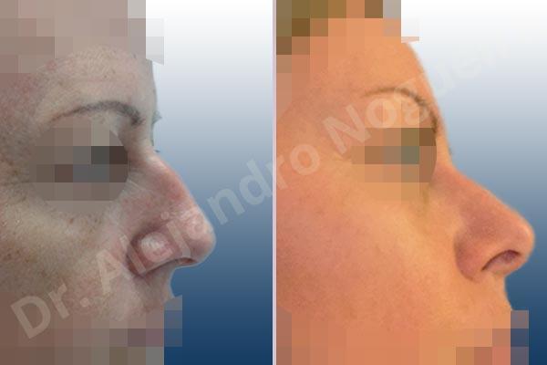 Nariz ancha,Giba dorsal,Cartílagos alares grandes,Nariz grande,Punta sobreproyectada,Incisión vía cerrada,Resección de giba dorsal,Resección cefálica de cruras laterales,Acortamiento por resección de cruras laterales,Acortamiento por resección de cruras mediales,Osteotomías de huesos nasales - photo 4