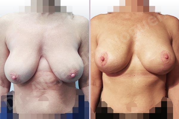Pechos asimétricos,Pseudoptosis por bottoming out o desfondamiento de implantes mamarios,Contractura capsular de implantes mamarios,Calcificación de la cápsula de los implantes mamarios,Malposición de implantes mamarios desplazados,Movimiento excesivo de implantes mamarios,Deslizamiento lateral de implantes mamarios,Ondulaciones o rippling de implantes mamarios,Visibilidad palpabilidad de implantes mamarios,Implantes mamarios rotos,Pechos vacíos,Pechos laterales,Mamas péndulas,Pechos severamente caídos descolgados,Mamas delgadas,Escote ancho de implantes de pechos excesivamente separados,Implantes mamarios demasiado estrechos,Efecto en cascada de agua de implantes mamarios,Forma anatómica,Capsulectomía,Incisión en chupachups,Bolsillo en plano subfascial,Pedículo superior - photo 1