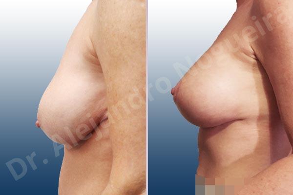 Pechos asimétricos,Pseudoptosis por bottoming out o desfondamiento de implantes mamarios,Contractura capsular de implantes mamarios,Calcificación de la cápsula de los implantes mamarios,Malposición de implantes mamarios desplazados,Movimiento excesivo de implantes mamarios,Deslizamiento lateral de implantes mamarios,Ondulaciones o rippling de implantes mamarios,Visibilidad palpabilidad de implantes mamarios,Implantes mamarios rotos,Pechos vacíos,Pechos laterales,Mamas péndulas,Pechos severamente caídos descolgados,Mamas delgadas,Escote ancho de implantes de pechos excesivamente separados,Implantes mamarios demasiado estrechos,Efecto en cascada de agua de implantes mamarios,Forma anatómica,Capsulectomía,Incisión en chupachups,Bolsillo en plano subfascial,Pedículo superior - photo 2