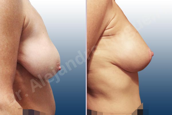 Pechos asimétricos,Pseudoptosis por bottoming out o desfondamiento de implantes mamarios,Contractura capsular de implantes mamarios,Calcificación de la cápsula de los implantes mamarios,Malposición de implantes mamarios desplazados,Movimiento excesivo de implantes mamarios,Deslizamiento lateral de implantes mamarios,Ondulaciones o rippling de implantes mamarios,Visibilidad palpabilidad de implantes mamarios,Implantes mamarios rotos,Pechos vacíos,Pechos laterales,Mamas péndulas,Pechos severamente caídos descolgados,Mamas delgadas,Escote ancho de implantes de pechos excesivamente separados,Implantes mamarios demasiado estrechos,Efecto en cascada de agua de implantes mamarios,Forma anatómica,Capsulectomía,Incisión en chupachups,Bolsillo en plano subfascial,Pedículo superior - photo 3