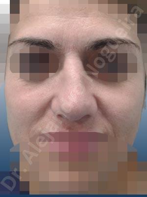 Retracción de borde alar,Nariz asimétrica,Punta asimétrica,Columela bífida,Punta bífida,Dorso ancho,Nariz ancha,Punta bulbosa,Cruras laterales cóncavas,Nariz desviada,Punta desviada,Giba dorsal,Crestas de dorso,Osteotomías fallidas,Deformidad en V invertida,Dorso irregular,Fibrosis nasal,Colapso de válvula nasal,Deformidad en techo abierto,Punta sobrerrotada,Deformidad de punta en paréntesis,Bóveda intermedia pinzada,Nariz pinzada,Punta mal definida,Punta mal soportada,Nariz corta,Septum corto,Cartílagos laterales superiores cortos,Cartílagos alares pequeños,Ruptura de suprapunta,Borde alar grueso,Nariz de piel gruesa,Irregularidades de punta,Punta infraproyectada,Alargamiento de columela,Injerto tutor de columela,Injerto de punta hecho a medida,Injerto de dorsocolumela,Resección de giba dorsal,Regularización de dorso,Toma de injerto de cartílago auricular,Injerto extendido tutor de columela,Plastia de columela con suturas intercrurales,Injerto de extensión caudal de cruras laterales,Injerto a medida de cruras laterales,Injerto de alargamiento de cruras laterales,Injerto de sustitución de cruras laterales,Reposicionamiento de cruras laterales,Osteotomías de huesos nasales,Injerto superpuesto de punta,Incisión vía abierta,Injerto de septocolumela,Injerto de extensión caudal de septum,Injerto de sustitución de septum,Injerto de punta en escudo,Injerto espaciador,Desgrasado de punta,Injerto de sustitución de punta,Retroposición de columela con lengüeta en ranura,Injerto de extensión caudal de cartílagos triangulares
