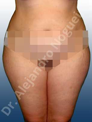 Grasa de las cartucheras,Grasa del muslo interior,Liposucción tumescente