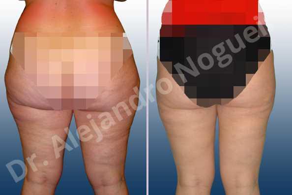 Grasa de las cartucheras,Grasa del muslo interior,Liposucción tumescente - photo 2