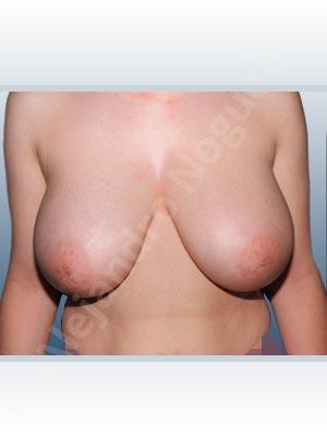 Unimama por sinmastia de tejidos mamarios,Pechos moderadamente grandes,Pechos severamente caídos descolgados,Pechos tuberosos,Incisión en ancla,Pedículo superior