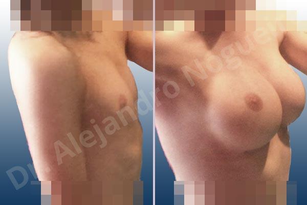 Pechos laterales,Pechos estrechos,Mamas delgadas,Pechos pequeños,Escote ancho de pechos excesivamente separados,Pechos transgénero,Forma anatómica,Incisión submamaria,Bolsillo en plano subfascial - photo 3