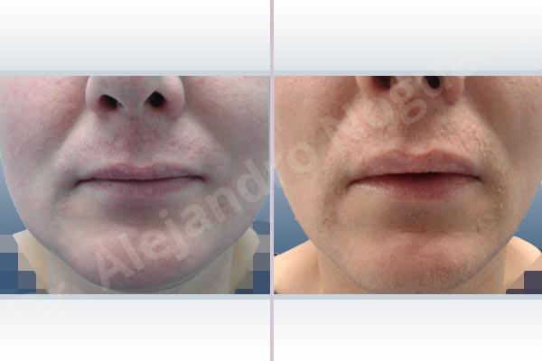 Labios pequeños,Labios transgénero,Relleno con colágeno dérmico autólogo de labio inferior