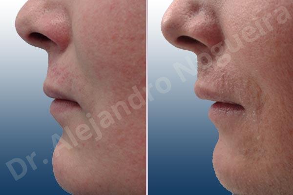 Labios pequeños,Labios transgénero,Relleno con colágeno dérmico autólogo de labio inferior - photo 2