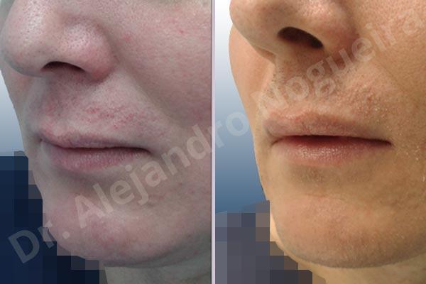 Labios pequeños,Labios transgénero,Relleno con colágeno dérmico autólogo de labio inferior - photo 3