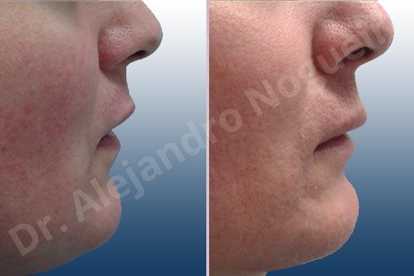 Labios pequeños,Labios transgénero,Relleno con colágeno dérmico autólogo de labio inferior - photo 4