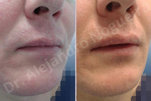 Labios pequeños,Labios transgénero,Relleno con colágeno dérmico autólogo de labio inferior - photo 5
