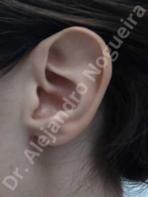 Orejas grandes,Orejas prominentes,Resección auricular cefálica en flor de lys