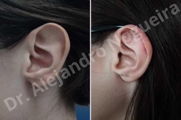 Orejas grandes,Orejas prominentes,Resección auricular cefálica en flor de lys - photo 1