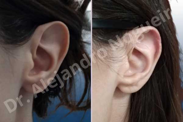 Orejas grandes,Orejas prominentes,Resección auricular cefálica en flor de lys - photo 2