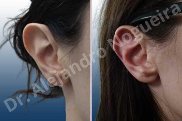Orejas grandes,Orejas prominentes,Resección auricular cefálica en flor de lys - photo 4