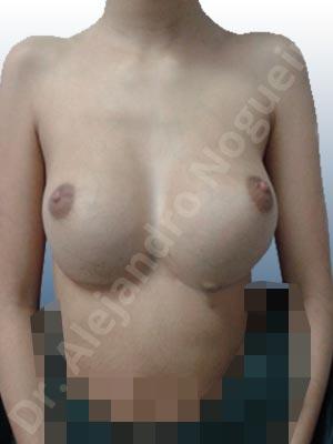Pseudoptosis por bottoming out o desfondamiento de implantes mamarios,Tienda de escote de implantes mamarios,Malposición de implantes mamarios desplazados,Movimiento excesivo de implantes mamarios,Deslizamiento lateral de implantes mamarios,Implantes mamarios excesivamente laterales,Unimama por sinmastia de implantes mamarios,Implantes mamarios bizcos,Mamas delgadas,Pechos pequeños,Forma anatómica,Capsulectomía,Incisión a medida,Incisión submamaria,Capsulorrafia sujetador interno,Bolsillo en plano subfascial