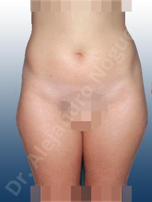 Abdomen adiposo,Grasa de las cartucheras,Liposucción tumescente