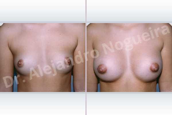 Pechos bizcos,Pechos laterales,Pechos estrechos,Pechos pequeños,Pechos tuberosos,Forma anatómica,Incisión hemiperiareolar inferior,Bolsillo en plano subfascial - photo 1