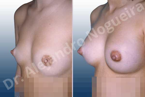 Pechos bizcos,Pechos laterales,Pechos estrechos,Pechos pequeños,Pechos tuberosos,Forma anatómica,Incisión hemiperiareolar inferior,Bolsillo en plano subfascial - photo 2