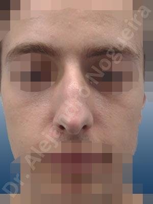 Giba dorsal,Crestas de dorso,Nariz larga,Septum largo,Cartílagos laterales superiores largos,Punta sobreproyectada,Deformidad de punta descendiente,Dorso romboidal,Nariz de piel delgada,Incisión vía cerrada,Resección de giba dorsal,Resección cefálica de cruras laterales,Acortamiento por resección de cruras laterales,Acortamiento por resección de cruras mediales,Osteotomías de huesos nasales,Resección caudal de cartílagos triangulares