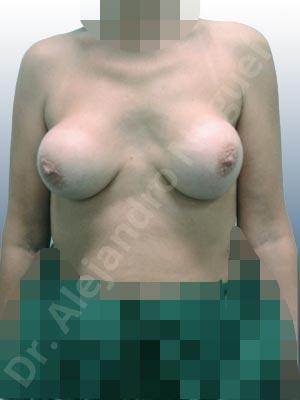 Pechos asimétricos,Calcificación de la cápsula de los implantes mamarios,Visibilidad palpabilidad de implantes mamarios,Implantes mamarios rotos,Pechos bizcos,Pechos vacíos,Pechos laterales,Pechos moderadamente caídos descolgados,Tórax prominente,Mamas delgadas,Pechos pequeños,Escote ancho de implantes de pechos excesivamente separados,Escote ancho de pechos excesivamente separados,Implantes mamarios demasiado estrechos,Pechos anchos,Forma anatómica,Capsulectomía,Incisión hemiperiareolar inferior,Bolsillo en plano subfascial,Tamaño extra grande