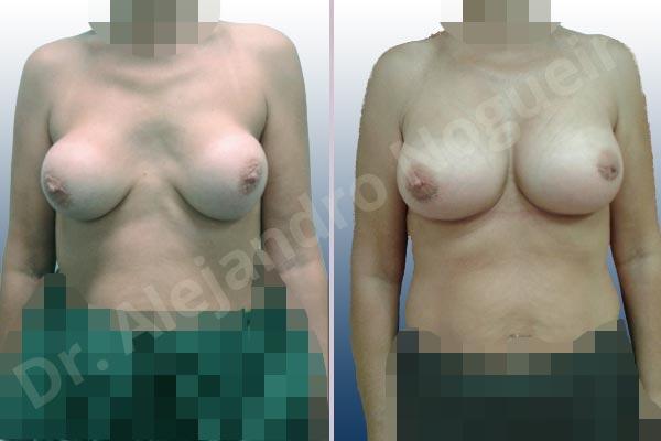 Pechos asimétricos,Calcificación de la cápsula de los implantes mamarios,Visibilidad palpabilidad de implantes mamarios,Implantes mamarios rotos,Pechos bizcos,Pechos vacíos,Pechos laterales,Pechos moderadamente caídos descolgados,Tórax prominente,Mamas delgadas,Pechos pequeños,Escote ancho de implantes de pechos excesivamente separados,Escote ancho de pechos excesivamente separados,Implantes mamarios demasiado estrechos,Pechos anchos,Forma anatómica,Capsulectomía,Incisión hemiperiareolar inferior,Bolsillo en plano subfascial,Tamaño extra grande - photo 1