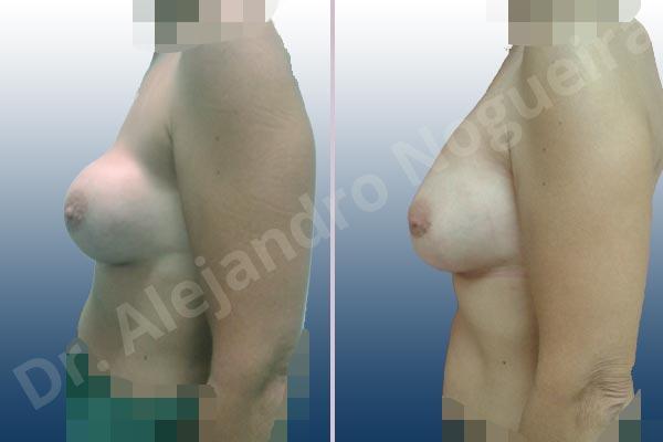Pechos asimétricos,Calcificación de la cápsula de los implantes mamarios,Visibilidad palpabilidad de implantes mamarios,Implantes mamarios rotos,Pechos bizcos,Pechos vacíos,Pechos laterales,Pechos moderadamente caídos descolgados,Tórax prominente,Mamas delgadas,Pechos pequeños,Escote ancho de implantes de pechos excesivamente separados,Escote ancho de pechos excesivamente separados,Implantes mamarios demasiado estrechos,Pechos anchos,Forma anatómica,Capsulectomía,Incisión hemiperiareolar inferior,Bolsillo en plano subfascial,Tamaño extra grande - photo 2
