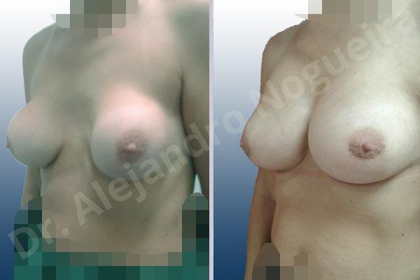 Pechos asimétricos,Calcificación de la cápsula de los implantes mamarios,Visibilidad palpabilidad de implantes mamarios,Implantes mamarios rotos,Pechos bizcos,Pechos vacíos,Pechos laterales,Pechos moderadamente caídos descolgados,Tórax prominente,Mamas delgadas,Pechos pequeños,Escote ancho de implantes de pechos excesivamente separados,Escote ancho de pechos excesivamente separados,Implantes mamarios demasiado estrechos,Pechos anchos,Forma anatómica,Capsulectomía,Incisión hemiperiareolar inferior,Bolsillo en plano subfascial,Tamaño extra grande - photo 3