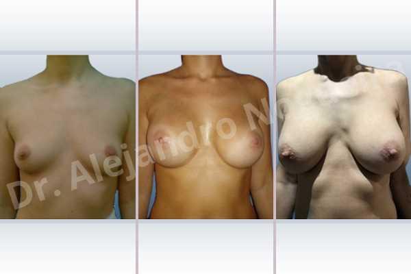 Pechos vacíos,Pechos laterales,Pechos estrechos,Mamas delgadas,Pechos pequeños,Escote ancho de pechos excesivamente separados,Bolsillo en plano dual,Incisión hemiperiareolar inferior,Forma redonda - photo 1