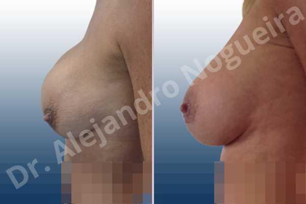 Pechos asimétricos,Contractura capsular de implantes mamarios,Calcificación de la cápsula de los implantes mamarios,Tienda de escote de implantes mamarios,Malposición de implantes mamarios desplazados,Implantes mamarios excesivamente altos,Visibilidad palpabilidad de implantes mamarios,Implantes mamarios rotos,Pechos bizcos,Implantes mamarios bizcos,Pechos vacíos,Pechos laterales,Pechos moderadamente caídos descolgados,Pechos estrechos,Mamas delgadas,Pechos pequeños,Escote ancho de pechos excesivamente separados,Implantes mamarios demasiado estrechos,Efecto en cascada de agua de implantes mamarios,Forma anatómica,Capsulectomía,Incisión hemiperiareolar inferior,Bolsillo en plano subfascial - photo 3