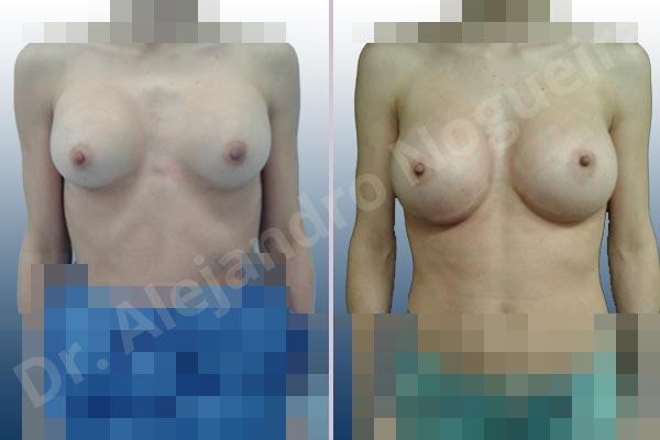Pechos asimétricos,Deformidad en mama dinámica de implantes mamarios,Contractura capsular de implantes mamarios,Calcificación de la cápsula de los implantes mamarios,Malposición de implantes mamarios desplazados,Deslizamiento lateral de implantes mamarios,Implantes mamarios excesivamente altos,Ondulaciones o rippling de implantes mamarios,Implantes mamarios excesivamente laterales,Visibilidad palpabilidad de implantes mamarios,Implantes mamarios rotos,Implantes mamarios bizcos,Cicatrices desplazadas malposicionadas,Pechos estrechos,Mamas delgadas,Pechos pequeños,Escote ancho de implantes de pechos excesivamente separados,Implantes mamarios demasiado estrechos,Efecto en cascada de agua de implantes mamarios,Forma anatómica,Capsulectomía,Incisión a medida,Incisión submamaria,Bolsillo en plano subfascial - photo 1