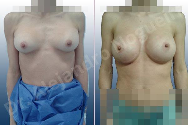 Pechos asimétricos,Deformidad en mama dinámica de implantes mamarios,Contractura capsular de implantes mamarios,Calcificación de la cápsula de los implantes mamarios,Malposición de implantes mamarios desplazados,Deslizamiento lateral de implantes mamarios,Implantes mamarios excesivamente altos,Ondulaciones o rippling de implantes mamarios,Implantes mamarios excesivamente laterales,Visibilidad palpabilidad de implantes mamarios,Implantes mamarios rotos,Implantes mamarios bizcos,Cicatrices desplazadas malposicionadas,Pechos estrechos,Mamas delgadas,Pechos pequeños,Escote ancho de implantes de pechos excesivamente separados,Implantes mamarios demasiado estrechos,Efecto en cascada de agua de implantes mamarios,Forma anatómica,Capsulectomía,Incisión a medida,Incisión submamaria,Bolsillo en plano subfascial - photo 2