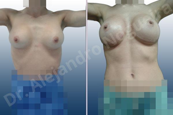 Pechos asimétricos,Deformidad en mama dinámica de implantes mamarios,Contractura capsular de implantes mamarios,Calcificación de la cápsula de los implantes mamarios,Malposición de implantes mamarios desplazados,Deslizamiento lateral de implantes mamarios,Implantes mamarios excesivamente altos,Ondulaciones o rippling de implantes mamarios,Implantes mamarios excesivamente laterales,Visibilidad palpabilidad de implantes mamarios,Implantes mamarios rotos,Implantes mamarios bizcos,Cicatrices desplazadas malposicionadas,Pechos estrechos,Mamas delgadas,Pechos pequeños,Escote ancho de implantes de pechos excesivamente separados,Implantes mamarios demasiado estrechos,Efecto en cascada de agua de implantes mamarios,Forma anatómica,Capsulectomía,Incisión a medida,Incisión submamaria,Bolsillo en plano subfascial - photo 3