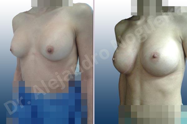 Pechos asimétricos,Deformidad en mama dinámica de implantes mamarios,Contractura capsular de implantes mamarios,Calcificación de la cápsula de los implantes mamarios,Malposición de implantes mamarios desplazados,Deslizamiento lateral de implantes mamarios,Implantes mamarios excesivamente altos,Ondulaciones o rippling de implantes mamarios,Implantes mamarios excesivamente laterales,Visibilidad palpabilidad de implantes mamarios,Implantes mamarios rotos,Implantes mamarios bizcos,Cicatrices desplazadas malposicionadas,Pechos estrechos,Mamas delgadas,Pechos pequeños,Escote ancho de implantes de pechos excesivamente separados,Implantes mamarios demasiado estrechos,Efecto en cascada de agua de implantes mamarios,Forma anatómica,Capsulectomía,Incisión a medida,Incisión submamaria,Bolsillo en plano subfascial - photo 5