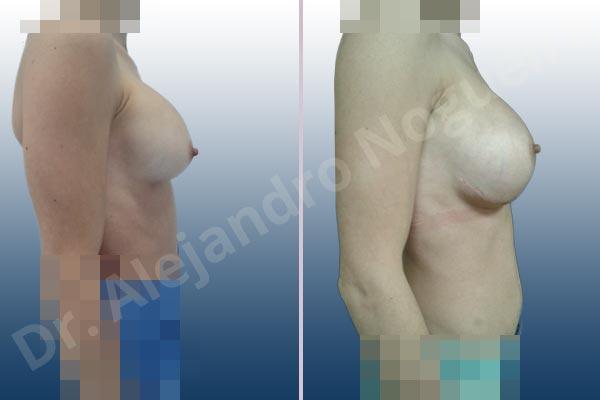 Pechos asimétricos,Deformidad en mama dinámica de implantes mamarios,Contractura capsular de implantes mamarios,Calcificación de la cápsula de los implantes mamarios,Malposición de implantes mamarios desplazados,Deslizamiento lateral de implantes mamarios,Implantes mamarios excesivamente altos,Ondulaciones o rippling de implantes mamarios,Implantes mamarios excesivamente laterales,Visibilidad palpabilidad de implantes mamarios,Implantes mamarios rotos,Implantes mamarios bizcos,Cicatrices desplazadas malposicionadas,Pechos estrechos,Mamas delgadas,Pechos pequeños,Escote ancho de implantes de pechos excesivamente separados,Implantes mamarios demasiado estrechos,Efecto en cascada de agua de implantes mamarios,Forma anatómica,Capsulectomía,Incisión a medida,Incisión submamaria,Bolsillo en plano subfascial - photo 7