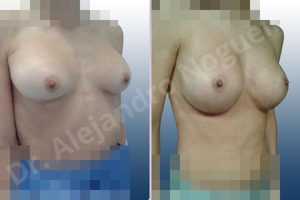 Pechos asimétricos,Deformidad en mama dinámica de implantes mamarios,Contractura capsular de implantes mamarios,Calcificación de la cápsula de los implantes mamarios,Malposición de implantes mamarios desplazados,Deslizamiento lateral de implantes mamarios,Implantes mamarios excesivamente altos,Ondulaciones o rippling de implantes mamarios,Implantes mamarios excesivamente laterales,Visibilidad palpabilidad de implantes mamarios,Implantes mamarios rotos,Implantes mamarios bizcos,Cicatrices desplazadas malposicionadas,Pechos estrechos,Mamas delgadas,Pechos pequeños,Escote ancho de implantes de pechos excesivamente separados,Implantes mamarios demasiado estrechos,Efecto en cascada de agua de implantes mamarios,Forma anatómica,Capsulectomía,Incisión a medida,Incisión submamaria,Bolsillo en plano subfascial - photo 9
