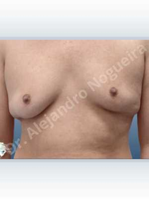 Ginecomastia,Mastectomía total