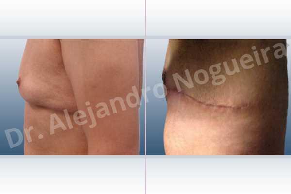 Ginecomastia,Mastectomía total - photo 2