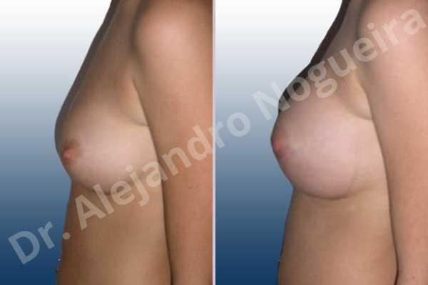 Pechos bizcos,Pechos pequeños,Forma anatómica,Incisión hemiperiareolar inferior,Bolsillo en plano subfascial - photo 2
