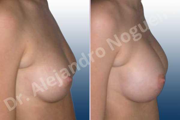 Pechos bizcos,Pechos pequeños,Forma anatómica,Incisión hemiperiareolar inferior,Bolsillo en plano subfascial - photo 4