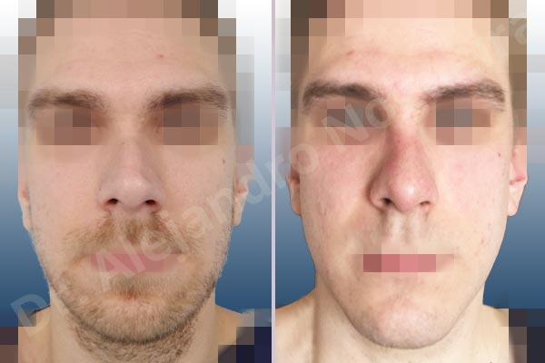 Valuable estetica facial aumento de menton can