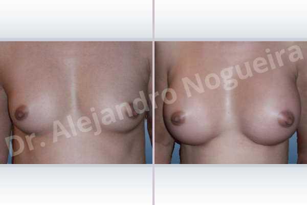 Pechos asimétricos,Pechos estrechos,Pechos pequeños,Forma anatómica,Incisión submamaria,Bolsillo en plano subfascial - photo 1