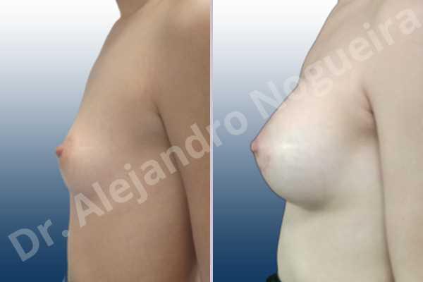 Pechos asimétricos,Pechos vacíos,Pechos laterales,Pechos pequeños,Escote ancho de pechos excesivamente separados,Forma anatómica,Incisión hemiperiareolar inferior,Bolsillo en plano subfascial - photo 2