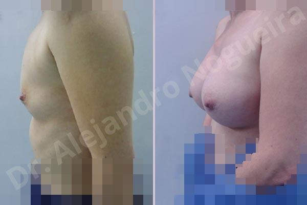 Pechos asimétricos,Pechos vacíos,Pechos pequeños,Forma anatómica,Tamaño extra grande,Incisión hemiperiareolar inferior,Bolsillo en plano subfascial - photo 2