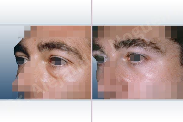 Párpados inferiores abultados,Resección de bolsas grasas en el párpado inferior,Incisión vía transconjuntival - photo 2