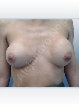 Pechos asimétricos,Contractura capsular de implantes mamarios,Calcificación de la cápsula de los implantes mamarios,Malposición de implantes mamarios desplazados,Implantes mamarios excesivamente altos,Implantes mamarios excesivamente laterales,Visibilidad palpabilidad de implantes mamarios,Implantes mamarios rotos,Implantes mamarios bizcos,Pechos vacíos,Pechos laterales,Mamas delgadas,Pechos ligeramente caídos descolgados,Pechos pequeños,Escote ancho de implantes de pechos excesivamente separados,Escote ancho de pechos excesivamente separados,Implantes mamarios demasiado estrechos,Forma anatómica,Capsulectomía,Tamaño extra grande,Incisión hemiperiareolar inferior,Bolsillo en plano subfascial